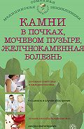 Александра Васильева -Камни в почках, мочевом пузыре, желчнокаменная болезнь