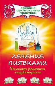 Наталья Ольшевская -Лечение пиявками. Золотые рецепты гирудотерапии